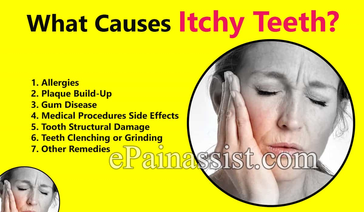 What Causes Itchy Teeth?