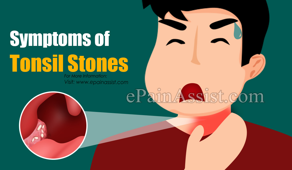 Symptoms of Tonsil Stones or Tonsilloliths