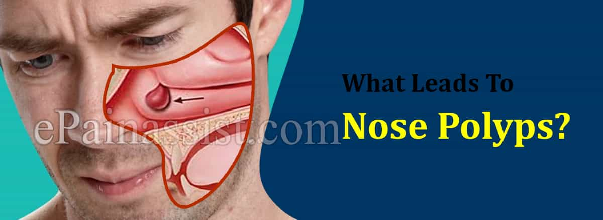 What Leads To Nose Polyps