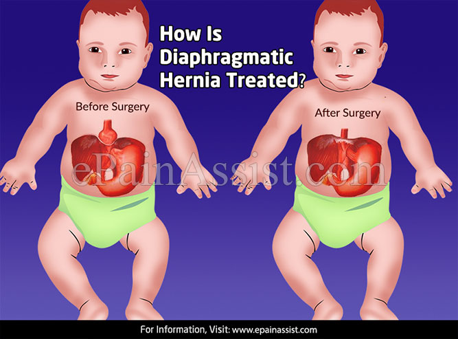 How Is Diaphragmatic Hernia Treated?