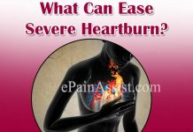 What Can Ease Severe Heartburn