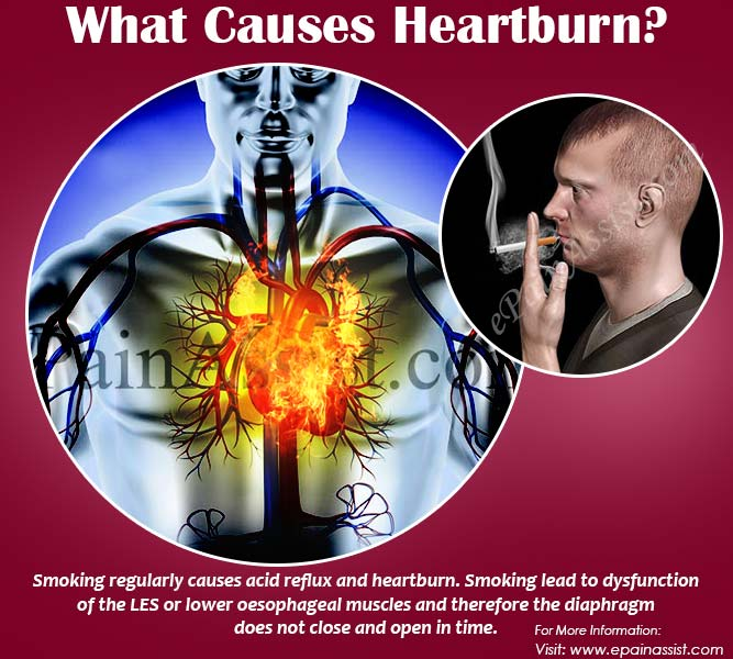 What Causes Heartburn at Night?