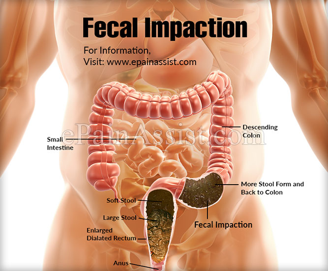 What Is Fecal Impaction How Is It Treated