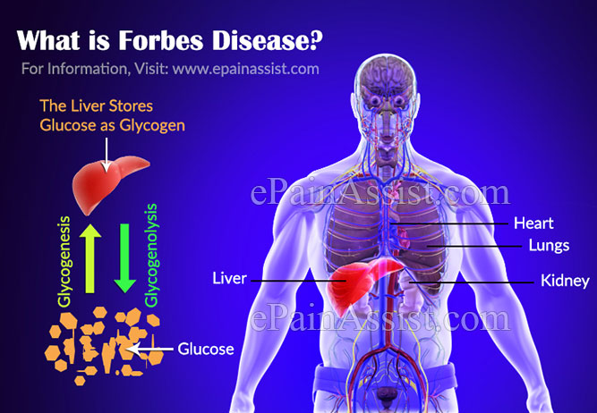 What is Forbes Disease?