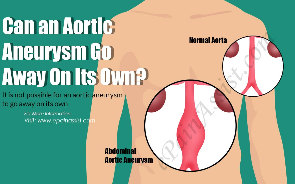 Can an Aortic Aneurysm Go Away On Its Own?
