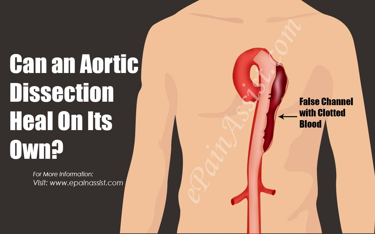 Can an Aortic Dissection Heal On Its Own?