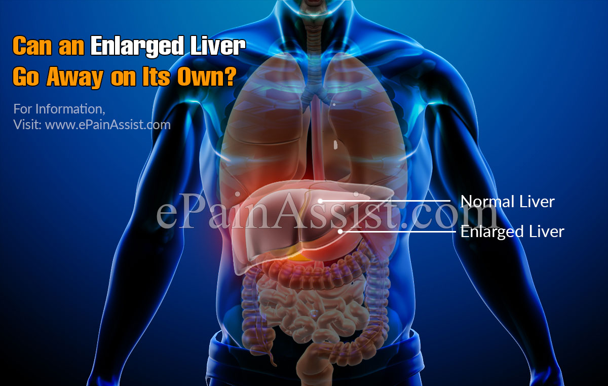 Can An Enlarged Liver Go Away On Its Own?