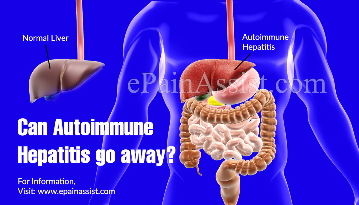 Can Autoimmune Hepatitis go away?