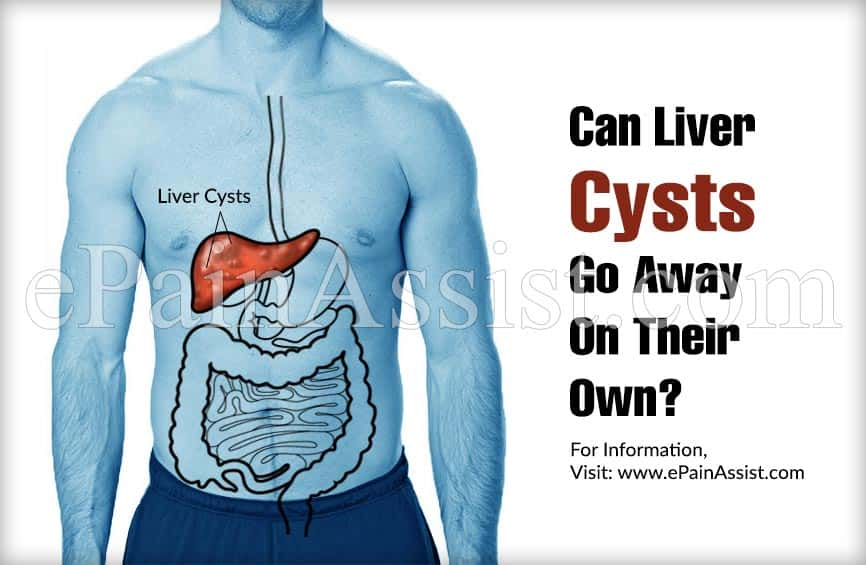 Can Liver Cysts Go Away On Their Own?