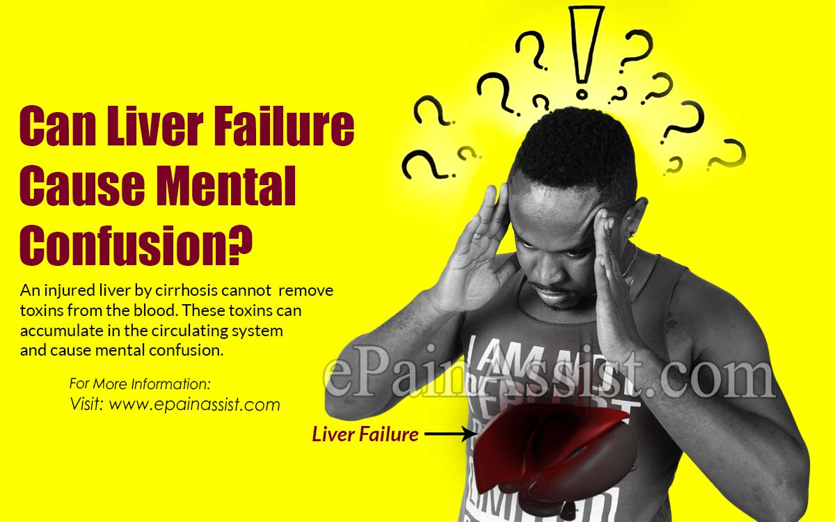 Can Liver Failure Cause Mental Confusion?