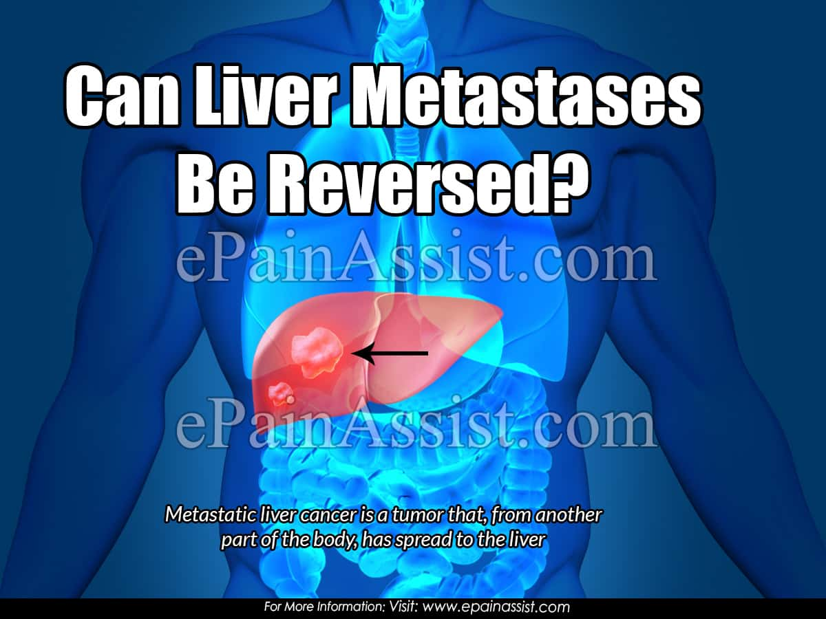 Can Liver Metastases Be Reversed?