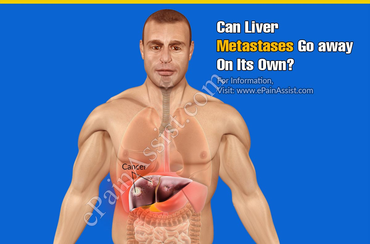 Can Liver Metastases Go Away On Its Own?