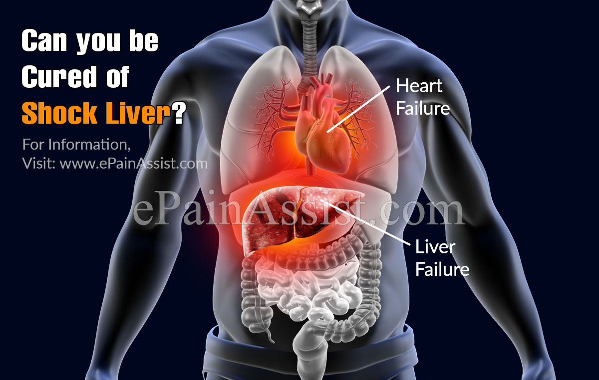 Can you be Cured of Shock Liver?