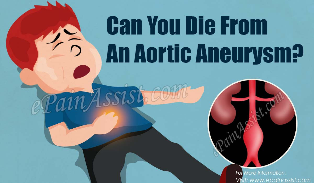 Can You Die From An Aortic Aneurysm?