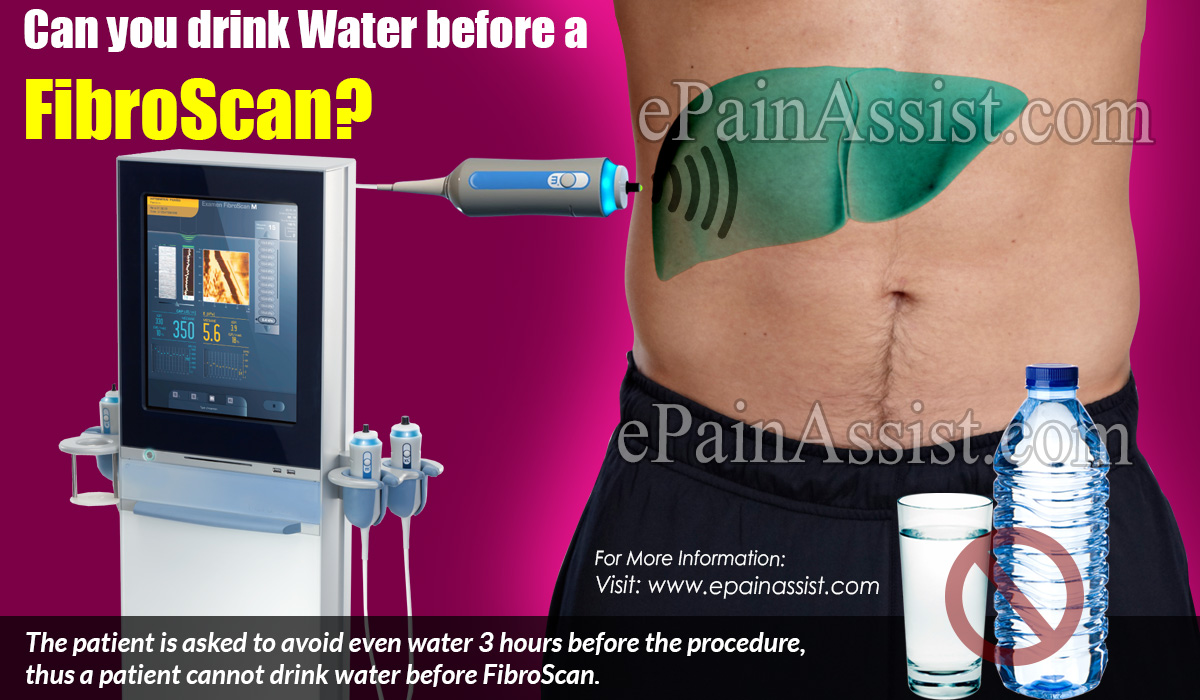 Can you drink Water before a FibroScan?