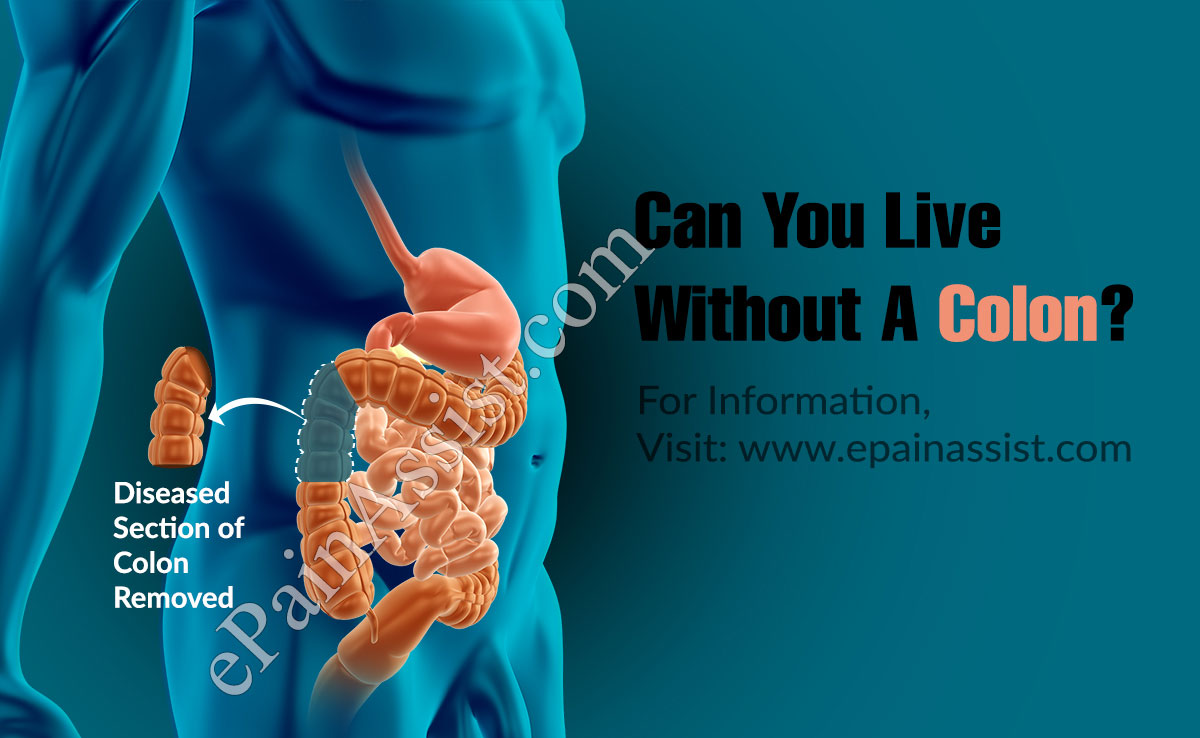 Can You Live Without A Colon?