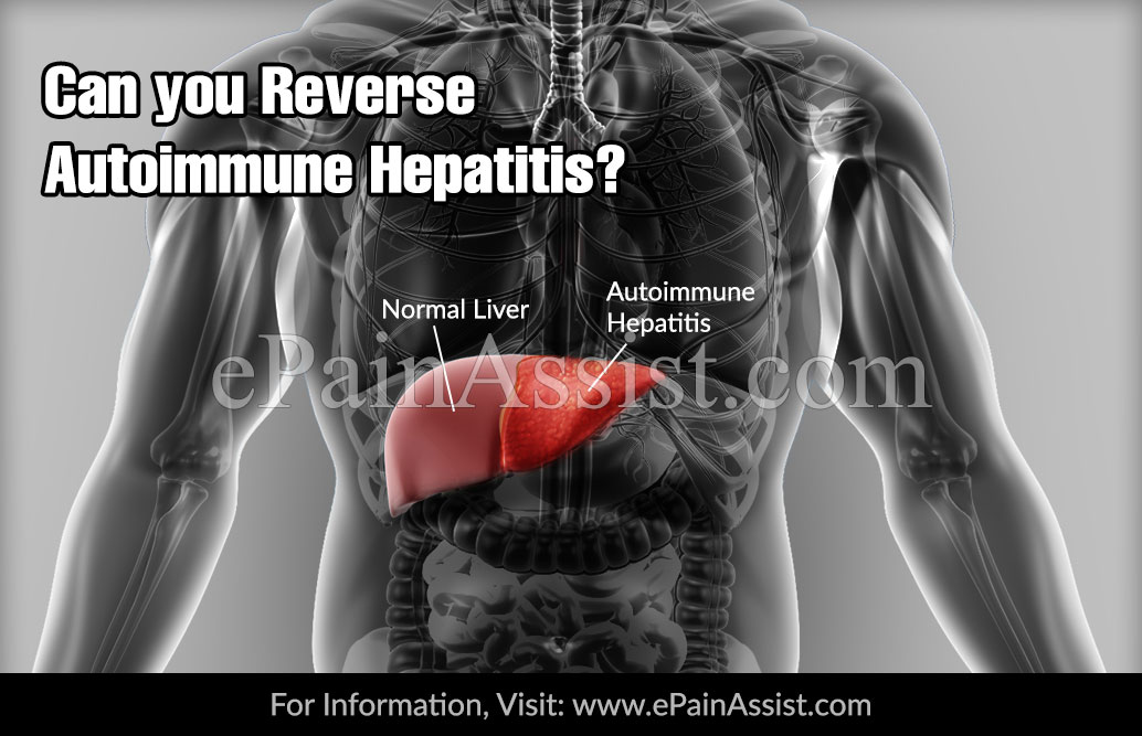 Can you Reverse Autoimmune Hepatitis?