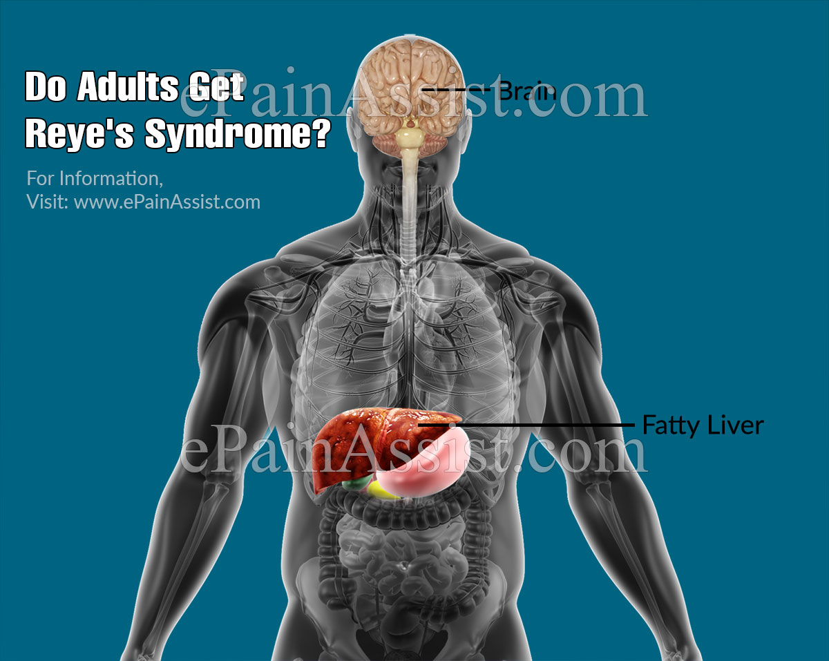 Do Adults Get Reye's Syndrome?