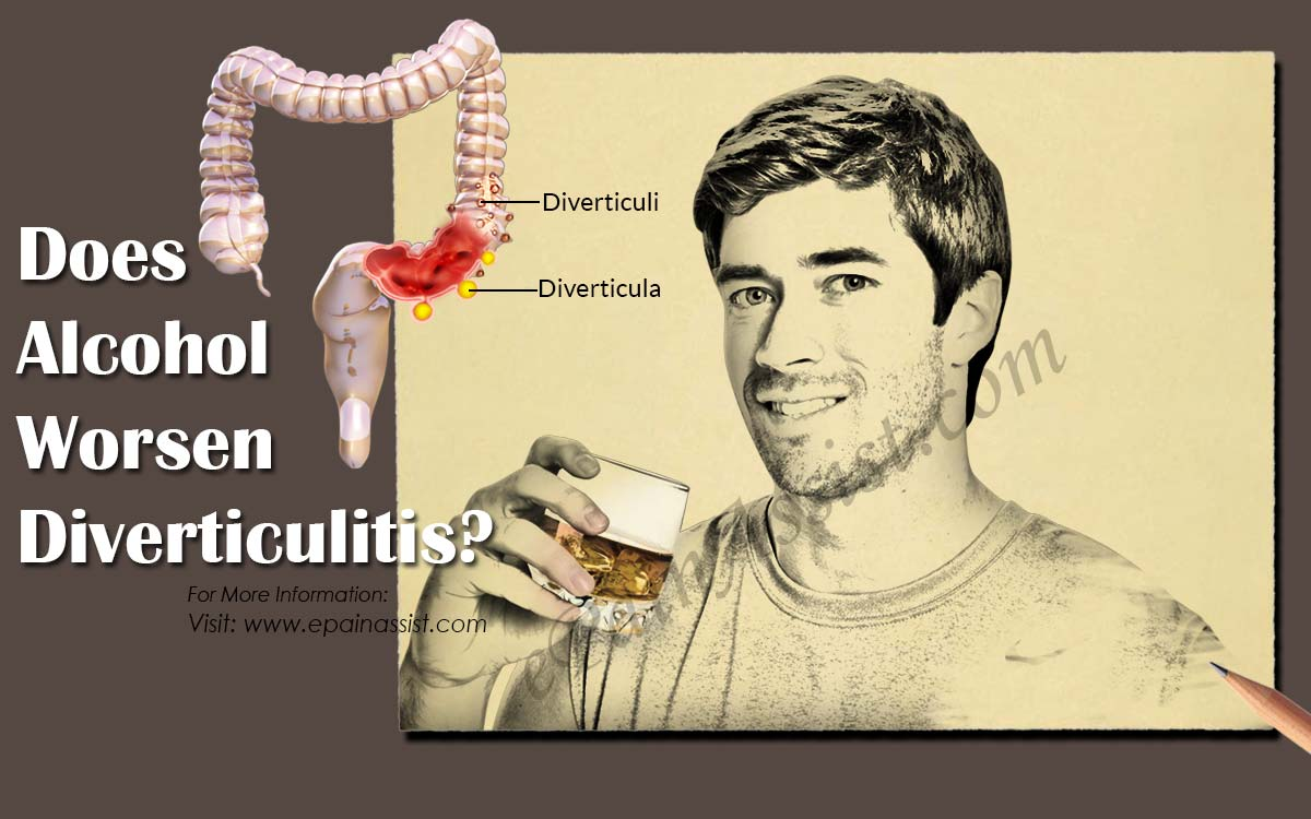 Does Alcohol Worsen Diverticulitis?
