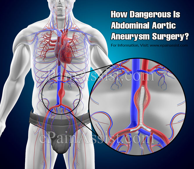 How Dangerous Is Abdominal Aortic Aneurysm Surgery