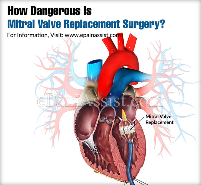 How Dangerous Is Mitral Valve Replacement Surgery?