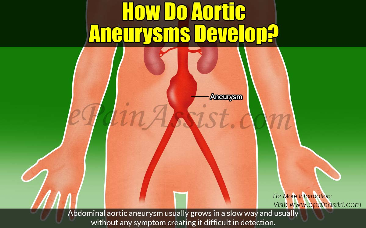How Do Aortic Aneurysms Develop?