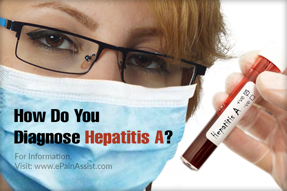How Do You Diagnose Hepatitis A?