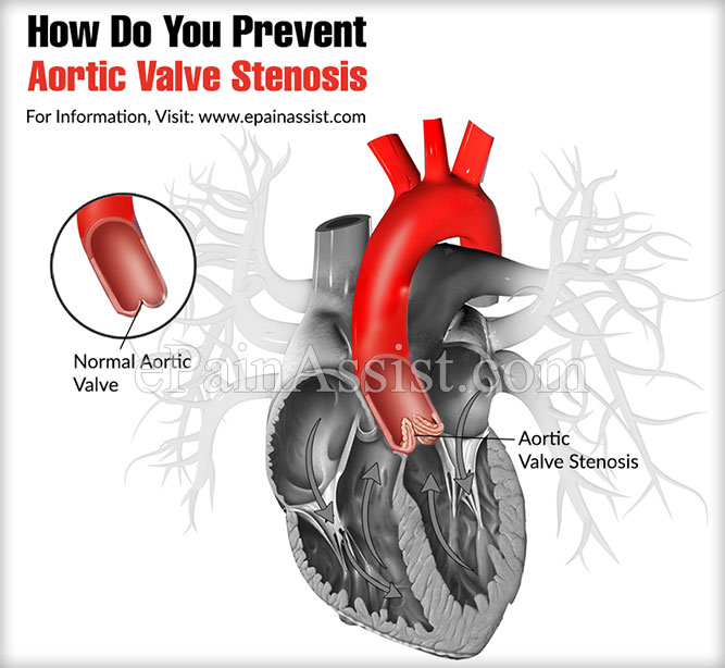 How Do You Prevent Aortic Valve Stenosis?