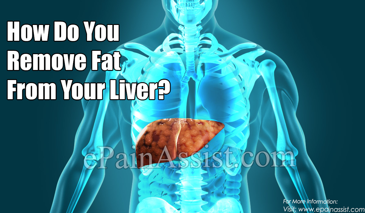How Do You Remove Fat From Your Liver?