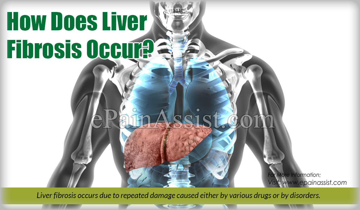 How Does Liver Fibrosis Occur?