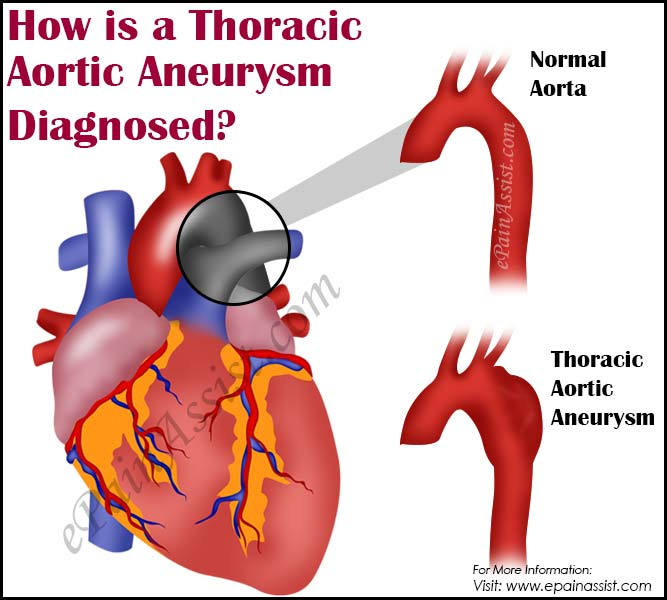 How is a Thoracic Aortic Aneurysm Diagnosed?