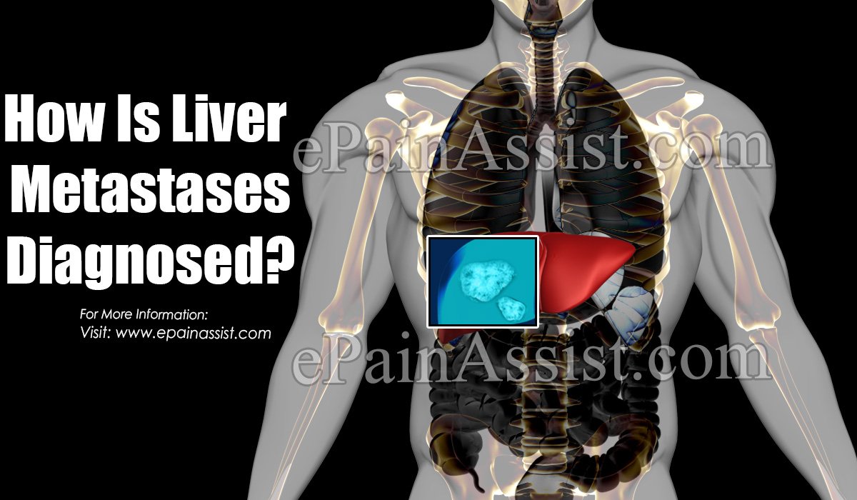 How Is Liver Metastases Diagnosed?