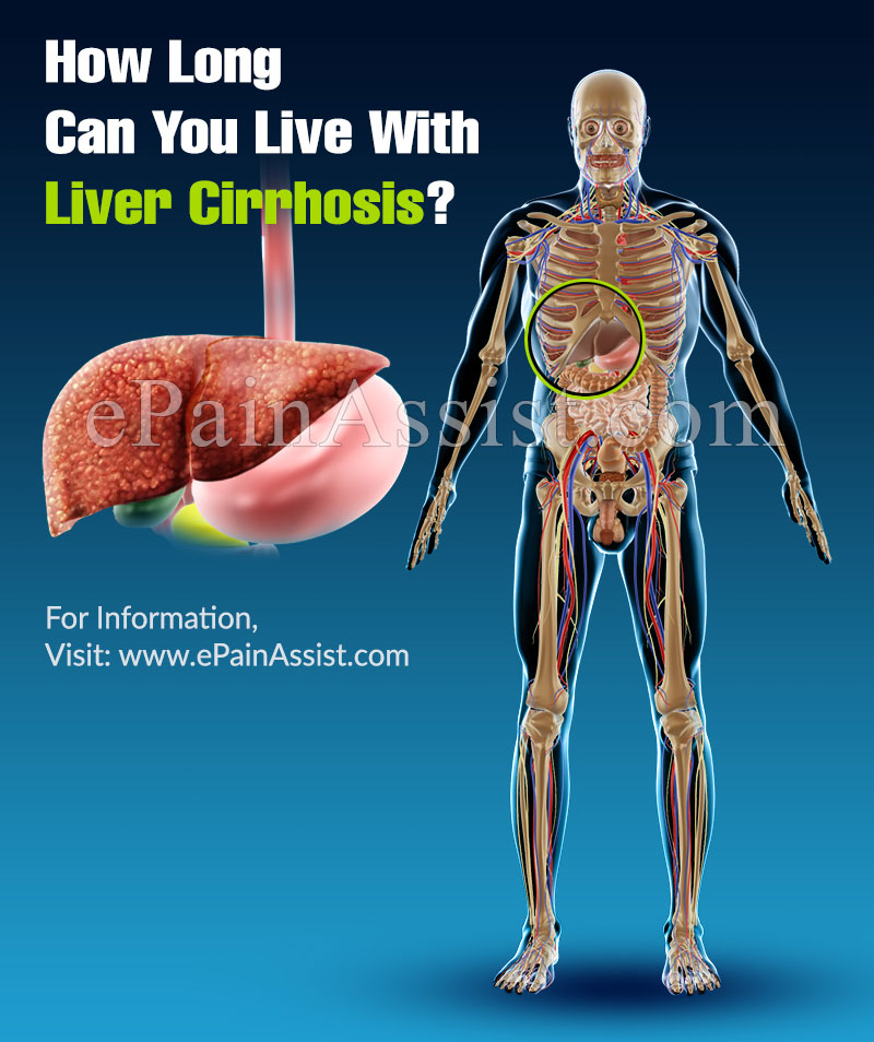 how long can you live with liver cirrhosis