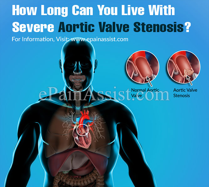 How Long Can You Live With Severe Aortic Valve Stenosis?