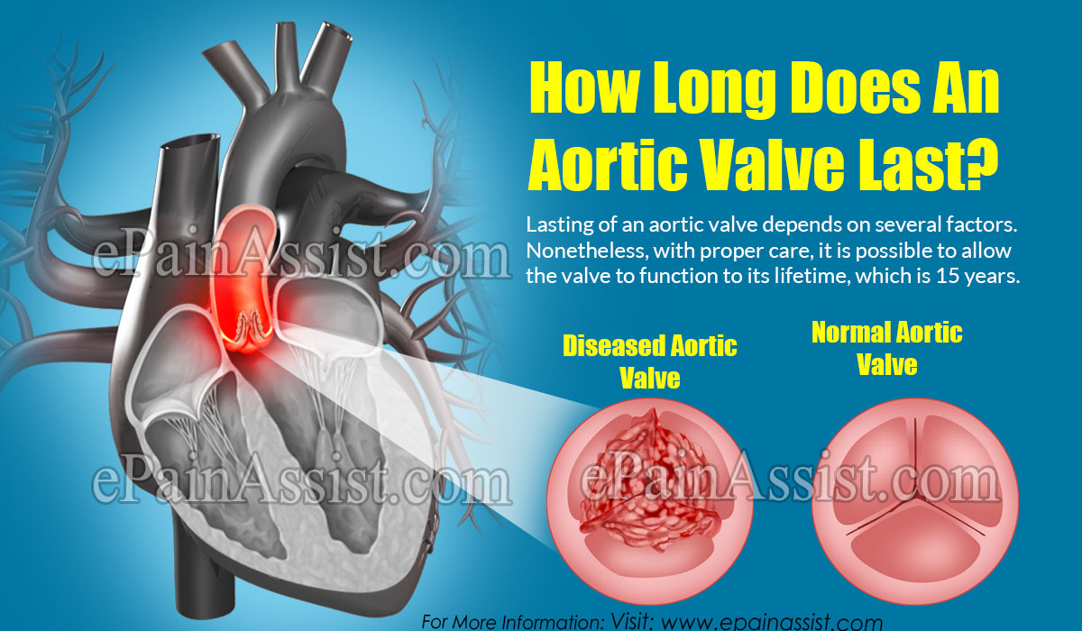 How Long Does An Aortic Valve Last?