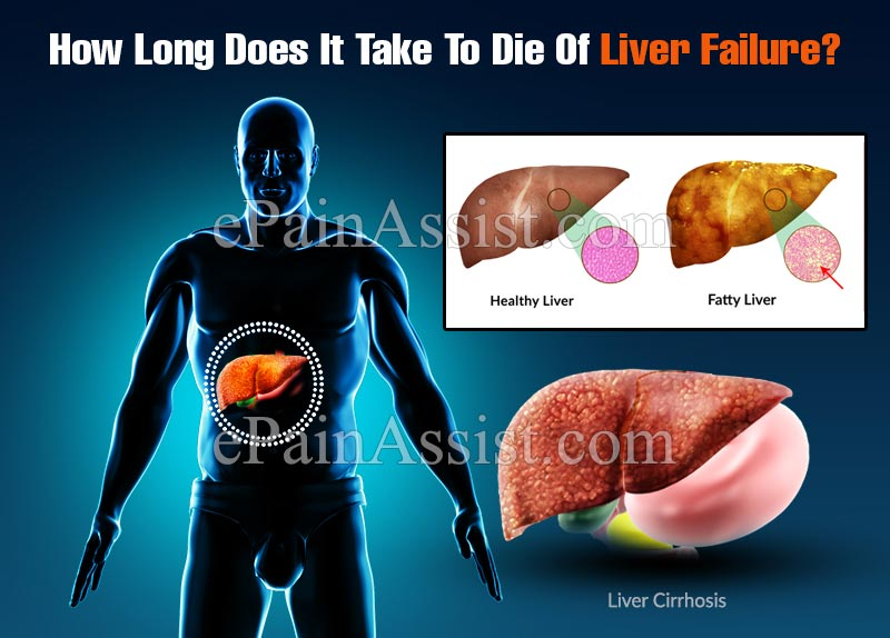 How Long Does It Take To Die Of Liver Failure?