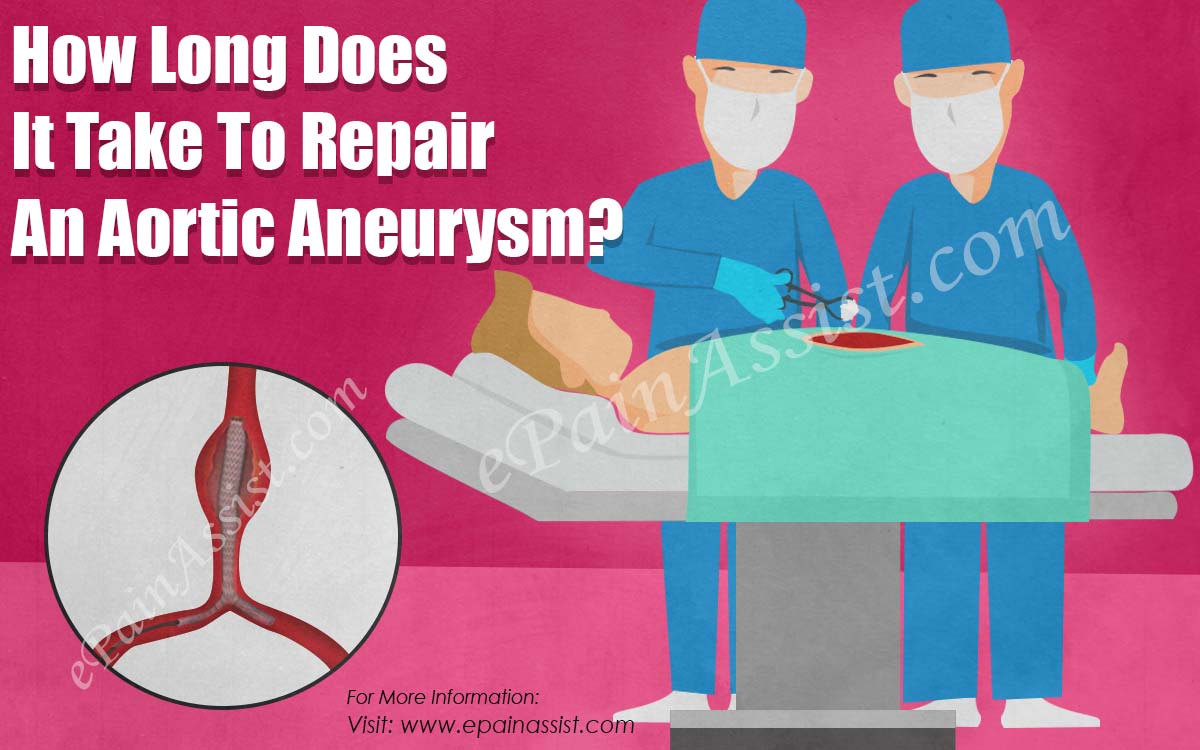 How Long Does It Take To Repair An Aortic Aneurysm?