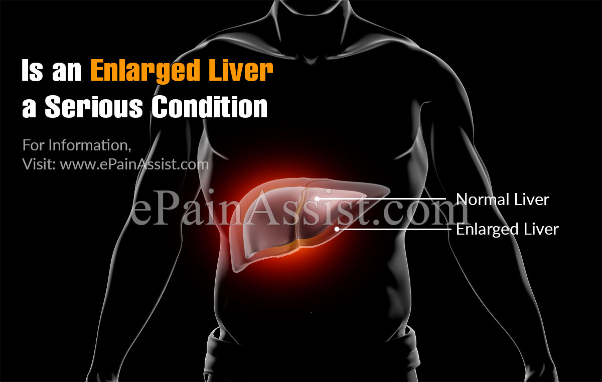 Is An Enlarged Liver a Serious Condition?