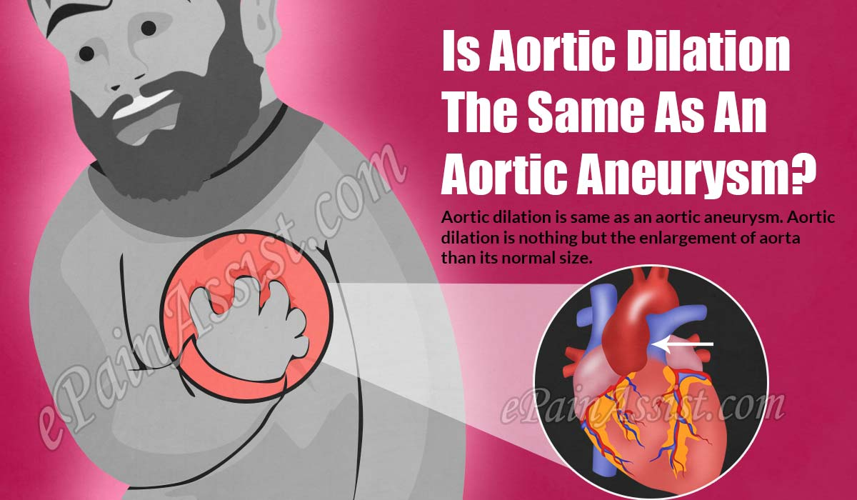 Is Aortic Dilation The Same As An Aortic Aneurysm?