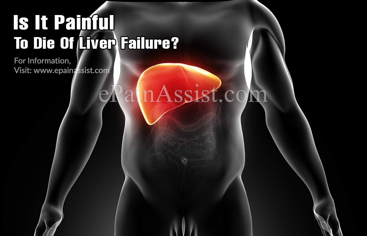 Is It Painful To Die Of Liver Failure?