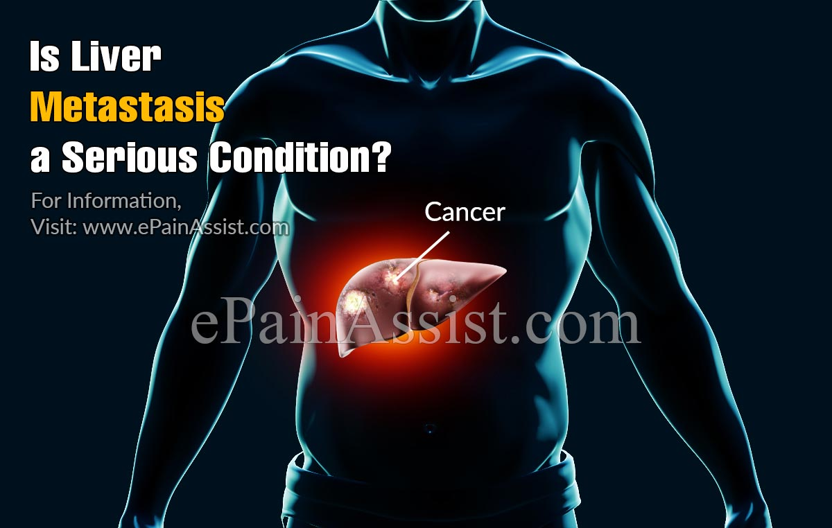 Is Liver Metastasis A Serious Condition?