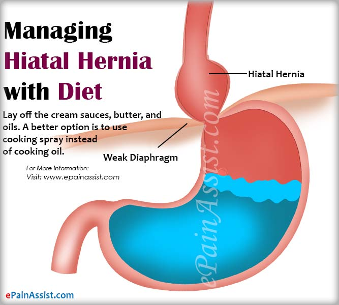 Managing Hiatal Hernia with Diet