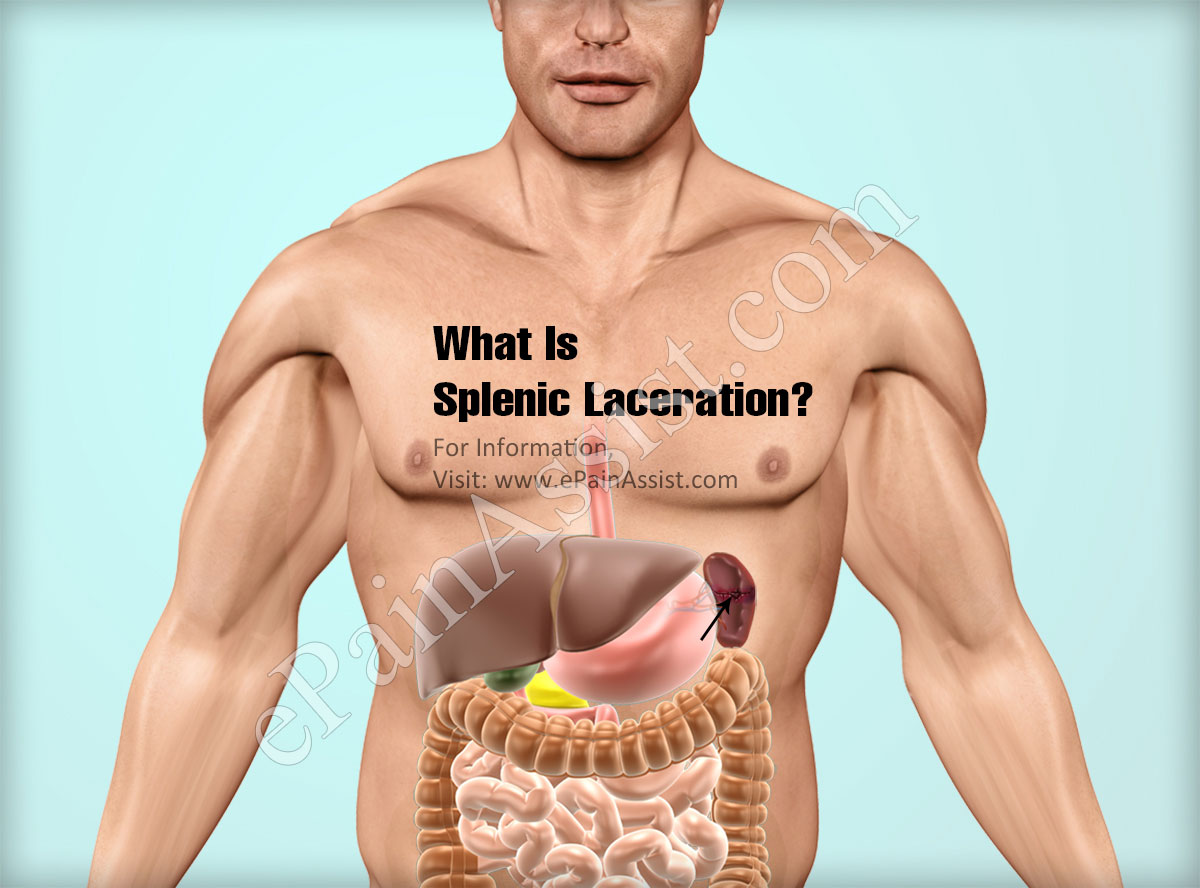 What Is Splenic Laceration?