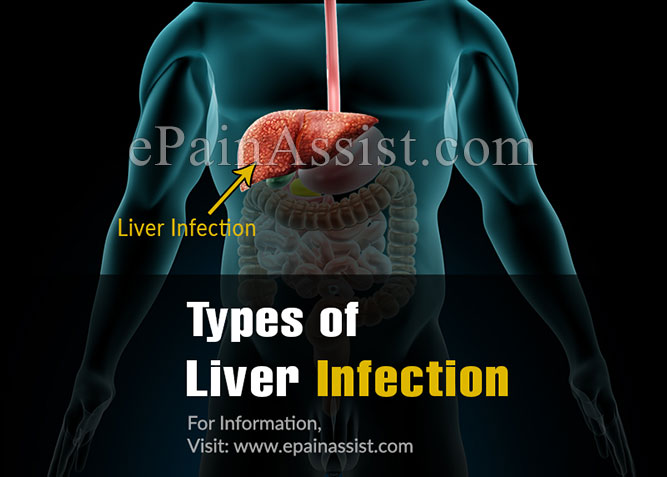 Types of Liver Infections