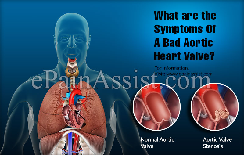 What are the Symptoms Of A Bad Aortic Heart Valve?