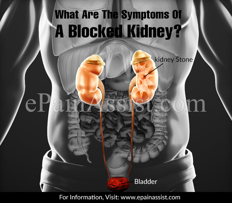 What Are The Symptoms Of A Blocked Kidney?