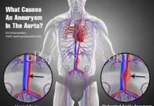 What Causes An Aneurysm In The Aorta?