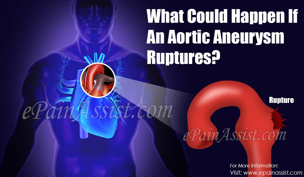 What Could Happen If An Aortic Aneurysm Ruptures?