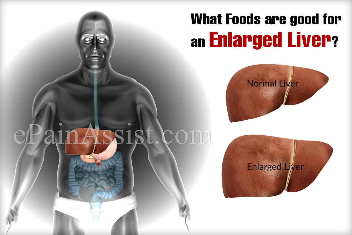 What Foods Are Good For An Enlarged Liver?