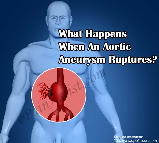 What Happens When An Aortic Aneurysm Ruptures?